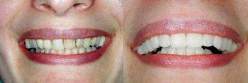 Smile Gallery - Estrella Dental, Elgin Dentist