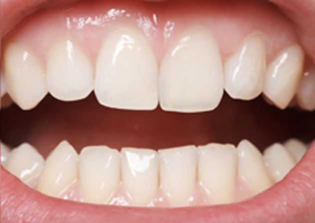 Cosmetic Bonding  - Estrella Dental, Elgin Dentist