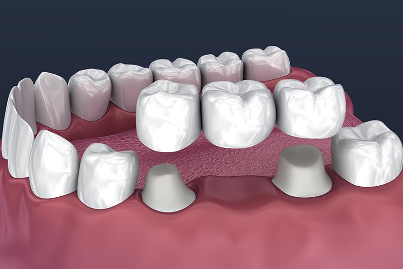 Crowns and Bridges, Inlays and Onlays  - Estrella Dental, Elgin Dentist