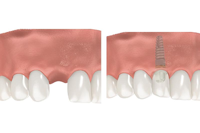 Dental Implants - Estrella Dental, Elgin Dentist