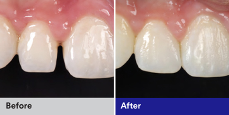 BioClear Diastema Closure and Black Triangle Closure  - Estrella Dental, Elgin Dentist