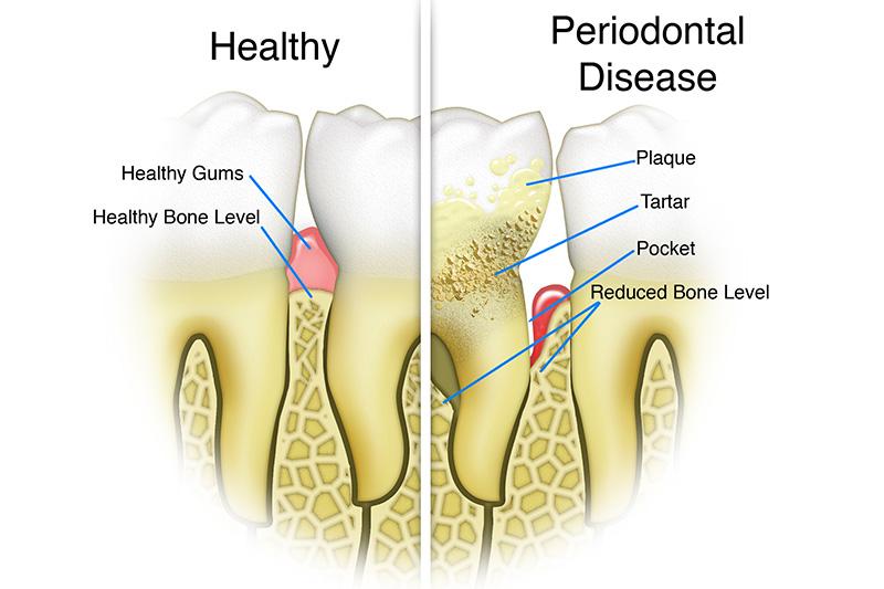 Scaling & Root Planings (Deep Cleanings)  - Estrella Dental, Elgin Dentist