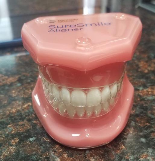 SureSmile® - Clear Braces - Estrella Dental, Elgin Dentist