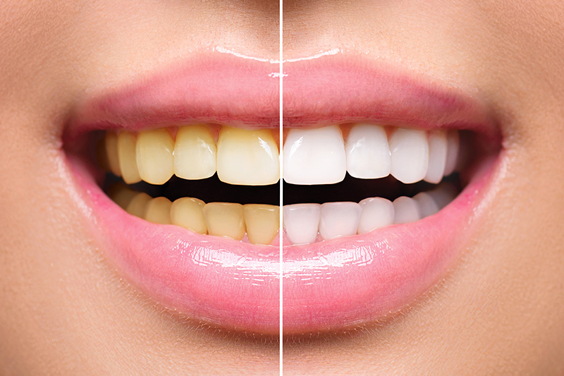Teeth Whitening - Estrella Dental, Elgin Dentist