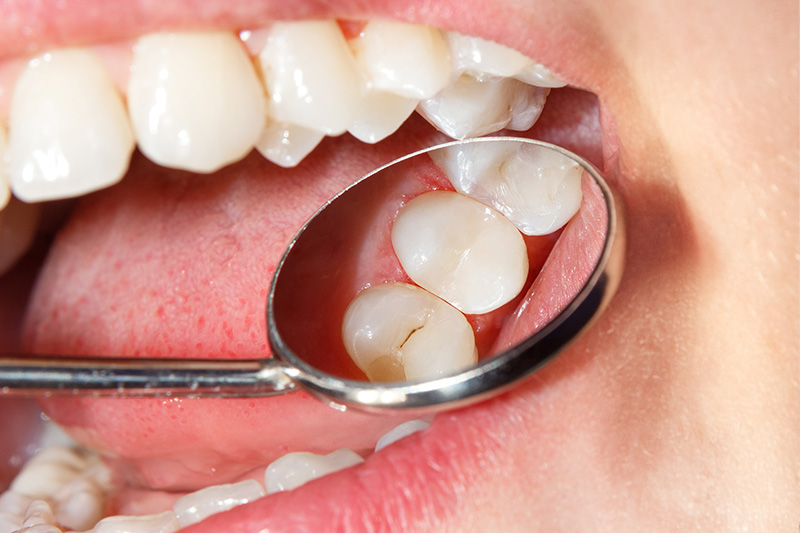 Tooth Colored Composite Fillings  - Estrella Dental, Elgin Dentist
