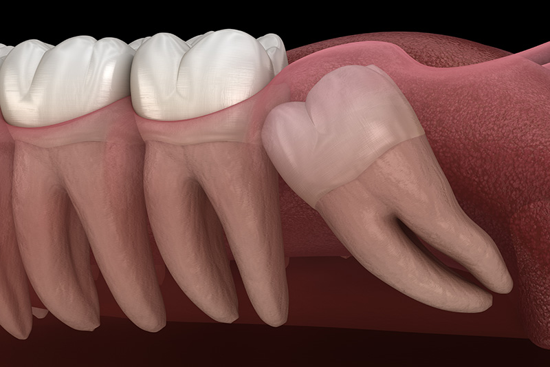 Wisdom Teeth Extractions (with Sedation)  - Estrella Dental, Elgin Dentist